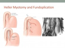 Heller Myotomy and Fundoplication